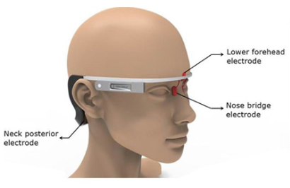 alzheimers wearable device